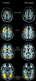 https://brain.oxfordjournals.org/content/128/7/1584/F3.expansion